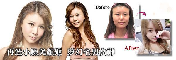 0削骨手術.jpg