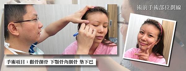 010削骨手術過程.jpg