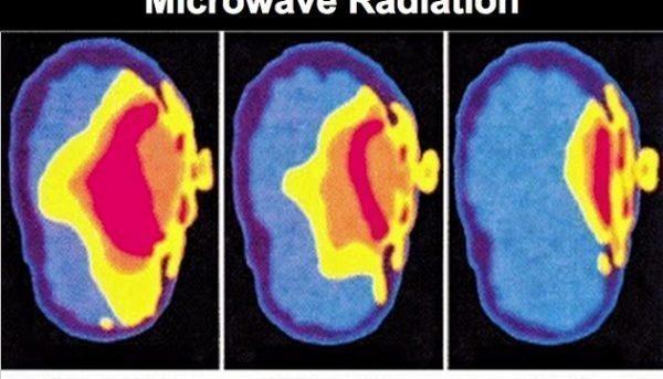 radiation-699x400-600x343.jpg