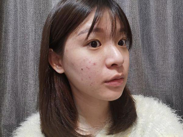 敏感性肌膚 2020-03-26 下午6.11.58