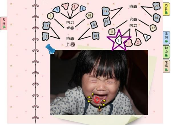 [1Y2M]第7顆牙