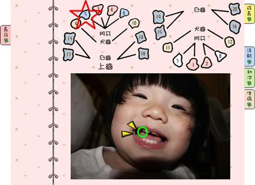 [1Y3M]第8顆牙