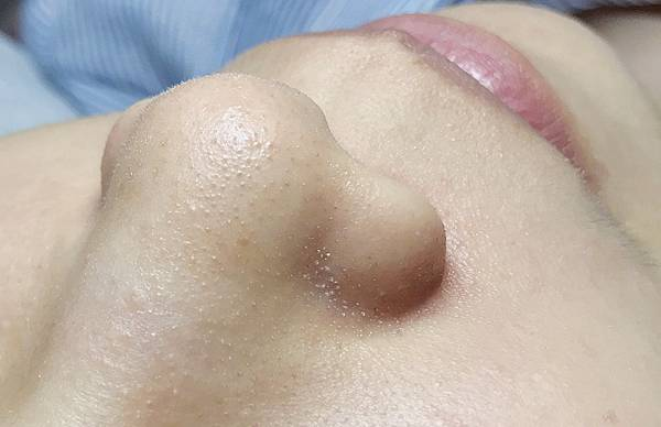 永和頂溪捷運站夏樂時尚美學/臉部保養/做臉/清粉刺