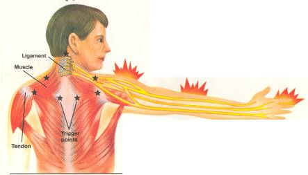cervical refer pain.jpg