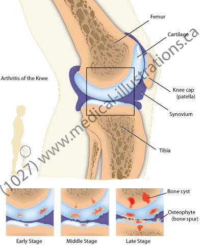 knee intra articular.jpg
