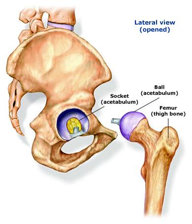 Hip intra articular.jpg
