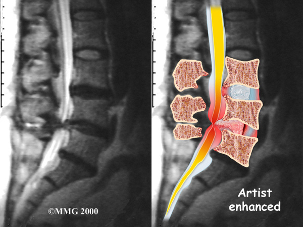 lumbar nerve compress.jpg
