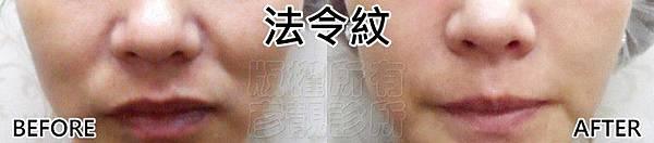 玻尿酸-法令紋-蘋果肌-眼袋-黑眼圈-淚溝-推薦-台北-桃園-新竹-診所-音波拉皮-削骨-童顏針-自體脂肪移植-手術-抽脂-多汗症-狐臭-止汗-醫美-醫生-消除改善-拉提-方式-價格費用-17030706.jpg
