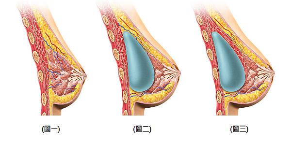 台北-桃園-玻尿酸-隆鼻-微晶瓷-隆乳-自體脂肪-豐胸-自體脂肪移植-風險-胸部-晶亮瓷-三段式隆鼻-假體隆鼻-手術隆鼻-隆鼻失敗-費用價格-副作用後遺症-新竹-推薦-醫美-18022210.png