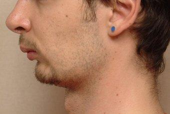 雙下巴-輪廓線-嘴邊肉-下巴內縮-醫美-瘦小臉-音波拉皮-拉提-下垂皺紋-年輕-價格費用-副作用後遺症病發症-台北-桃園-新竹-18042504.png