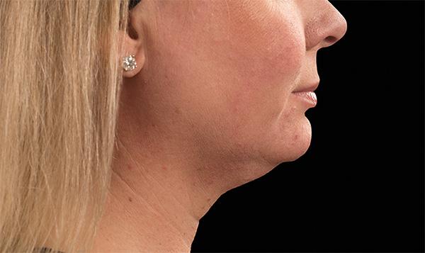 雙下巴-輪廓線-嘴邊肉-下巴內縮-醫美-瘦小臉-音波拉皮-拉提-下垂皺紋-年輕-價格費用-副作用後遺症病發症-台北-桃園-新竹-18042507.png