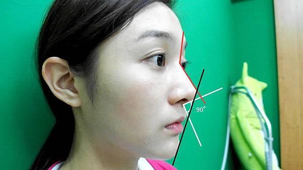 桃園-台北-玻尿酸-隆鼻-墊下巴-瘦小臉-回春拉皮-推薦-新竹-高雄00010.jpg