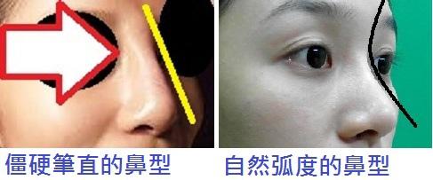 桃園-台北-玻尿酸-隆鼻-墊下巴-瘦小臉-回春拉皮-推薦-新竹-高雄00013.jpg