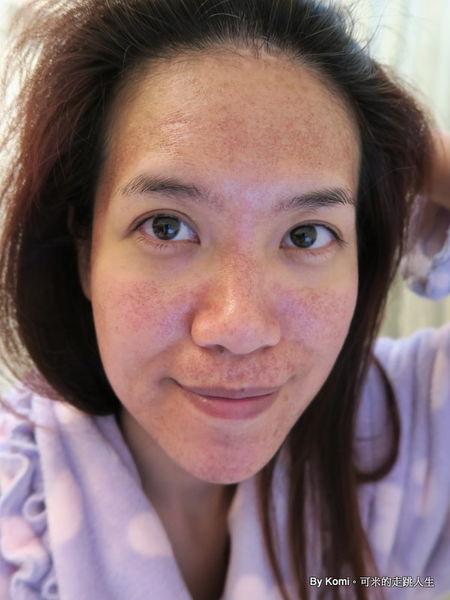 桃園-台北-飛梭雷射-淨膚雷射-柔膚雷射-除凹疤-痘疤-縮小毛孔-玻尿酸-肉毒桿菌-回春-拉提-推薦-價格-費用-副作用001601.jpg