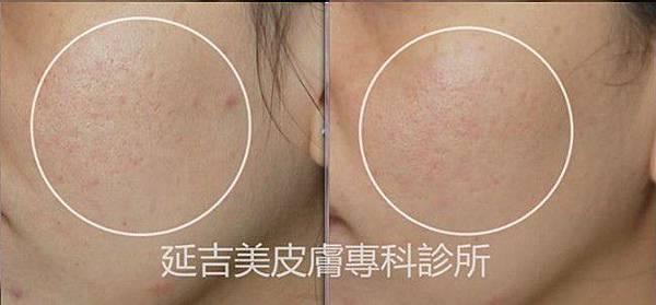 箱型痘疤-2(1)