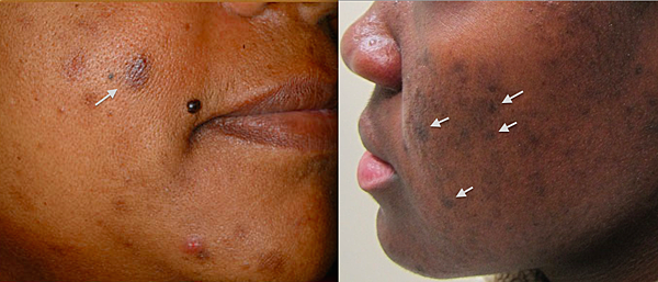 acne PIH