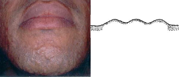 papular acne scar