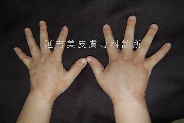 肢端型黑色棘皮症1--劉權毅醫師提供
