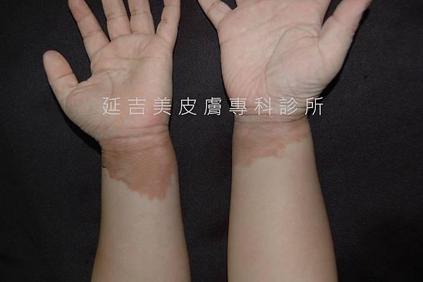 肢端型黑色棘皮症--劉權毅醫師提供