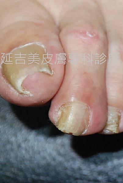 onychomycosis case-3