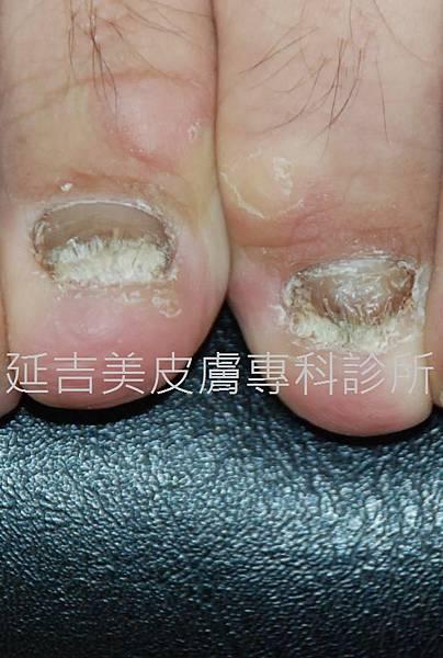 onychomycosis case-5a
