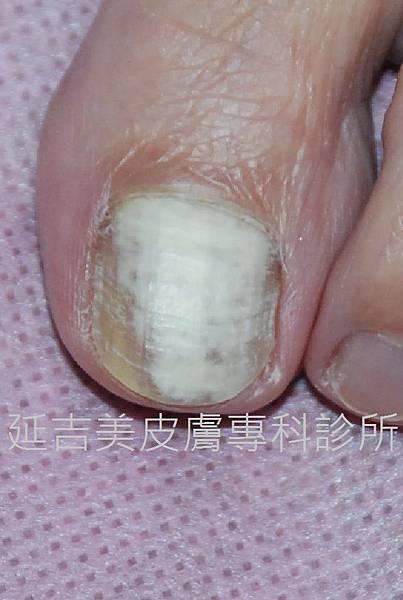 onychomycosis case-6a