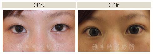 縫雙眼皮手術案例4.jpg