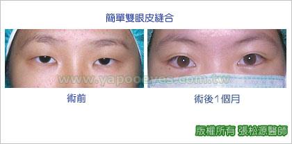 縫雙眼皮手術案例5.jpg