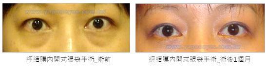 內開式眼袋手術案例1.jpg