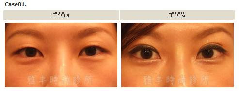 縫雙眼皮手術案例1.jpg
