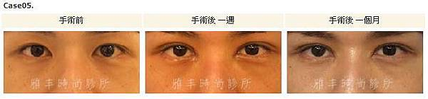 割雙眼皮手術案例5.jpg