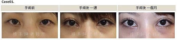 割雙眼皮手術案例1.jpg