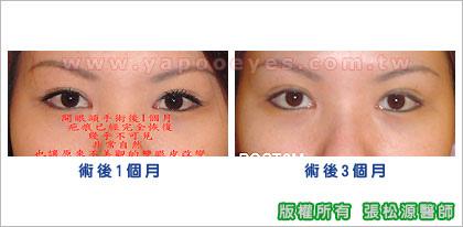 開眼頭術後1個月-3個月.jpg