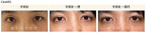 割雙眼皮手術案例3.jpg