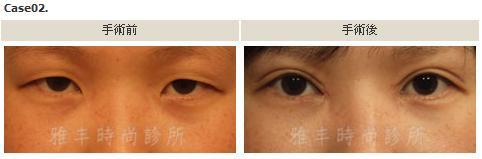 割雙眼皮手術案例2.jpg