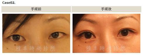 縫雙眼皮手術案例2.jpg