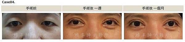 割雙眼皮手術案例4.jpg
