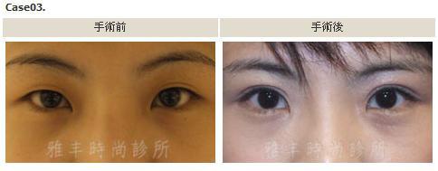 縫雙眼皮手術案例3.jpg