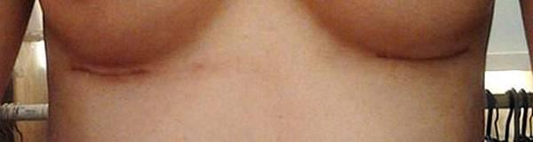 果凍隆乳手術疤痕比較03