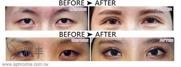 提眼肌手術