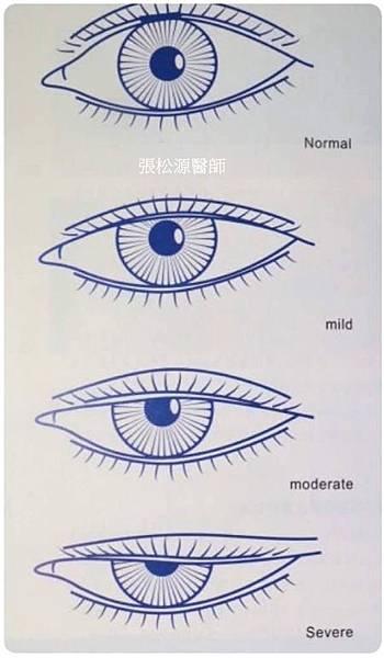 提眼瞼肌無力.jpg