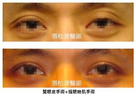 雙眼皮+提眼瞼肌手術01.jpg