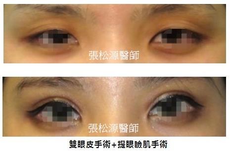 雙眼皮+提眼瞼肌手術02.jpg