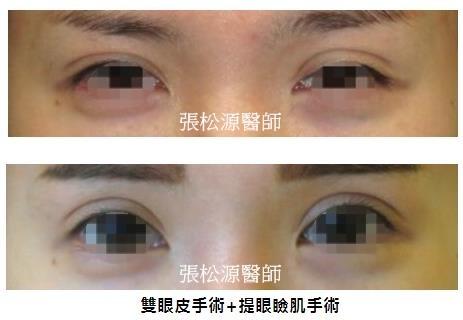 雙眼皮+提眼瞼肌手術03.jpg
