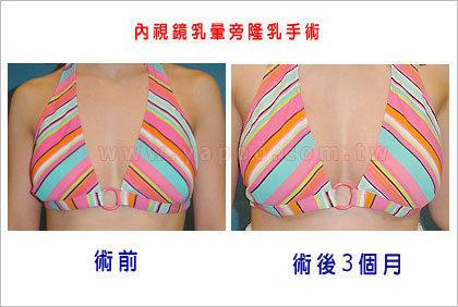 隆乳案例張松源醫師1-3.jpg