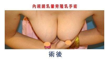 隆乳案例張松源醫師4-3.jpg