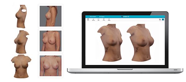 電腦模擬隆乳術後2.png