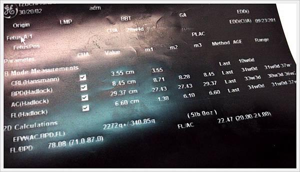 產檢 2013.07.02 (1).jpg