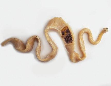 04、絛蟲病﹝Teniasis﹞:Taenia solium.jpg