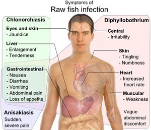 05、肝吸蟲病﹝Clonorchiasis﹞:300px-Symptoms_of_Raw_fish_infection.png
